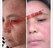 桂林斑美拉面部排毒代理加盟