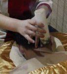 骑竹马灸疗法