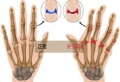 强直性脊柱炎与类风湿关节有什么区别