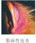 皮肤病是什么原因引起的?