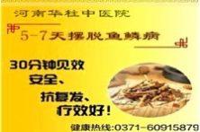 上海中医如何治疗鱼鳞病
