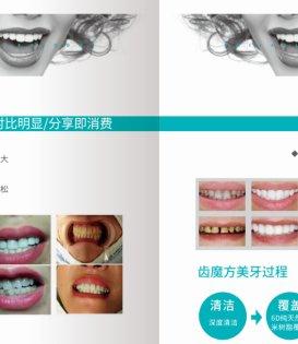 齿魔方代理模式?