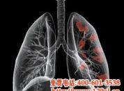 肺癌的发病原因有哪些?这些你注意了吗?