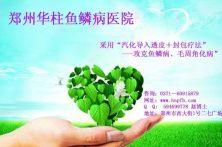 郑州治疗鱼鳞病诊疗中心