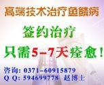 郑州哪家治疗鱼鳞病有名气