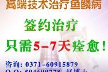 郑州鱼鳞病医院