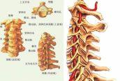 中医治疗颈椎病