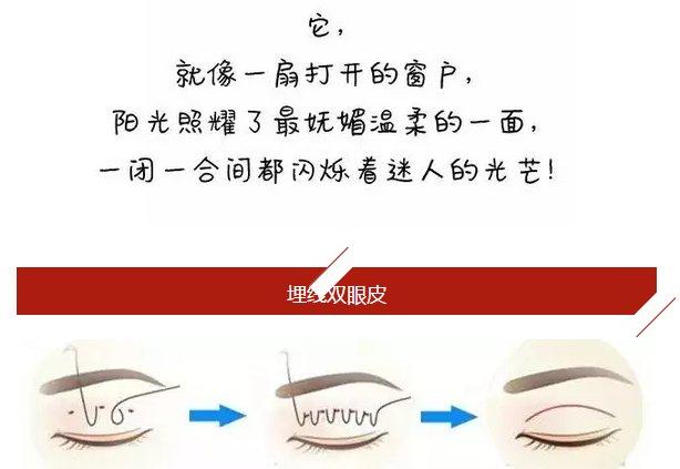 一张美丽的脸上绝对少不了  埋线双眼皮 过程:通过缝合方式,直接